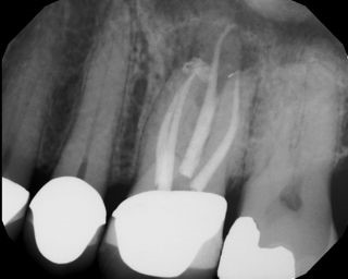 Root Canal - Access Through Crown